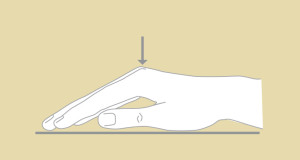 Dupuytrens_3 - Figure 3