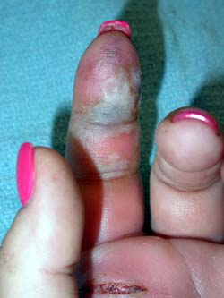HandInfections_MRSA_web